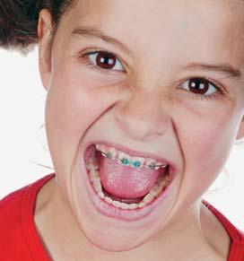 Poorter tandartsen: beugel / orthodontist