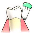 Poorter Tandartsen: tanden poetsen, preventieve tandzorg
