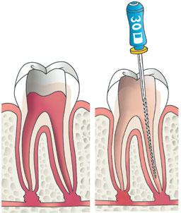 Poorter tandartsen Zoetermeer: Wortelkanaalbehandeling